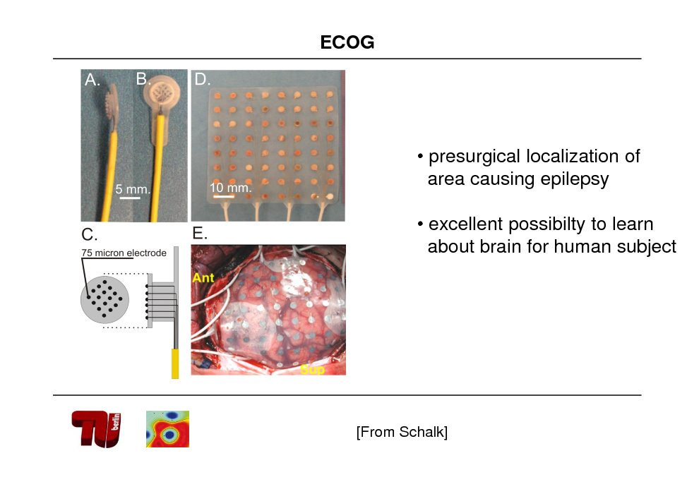Slide: ECOG   presurgical localization of area causing epilepsy   excellent possibilty to learn about brain for human subject  [From Schalk]