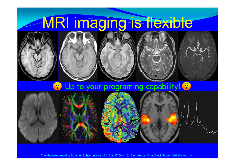 Slide: MRI imaging is flexible  Up to your programing capability!  The Machine Learning Summer School in Kyoto 2012 at 17:30  18:15 on August 31 at Clock Tower Hall, Kyoto Univ.