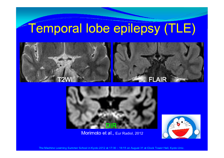 Slide: Temporal lobe epilepsy (TLE)  T2WI  FLAIR  Morimoto et al., Eur Radiol, 2012 The Machine Learning Summer School in Kyoto 2012 at 17:30  18:15 on August 31 at Clock Tower Hall, Kyoto Univ.  DIR