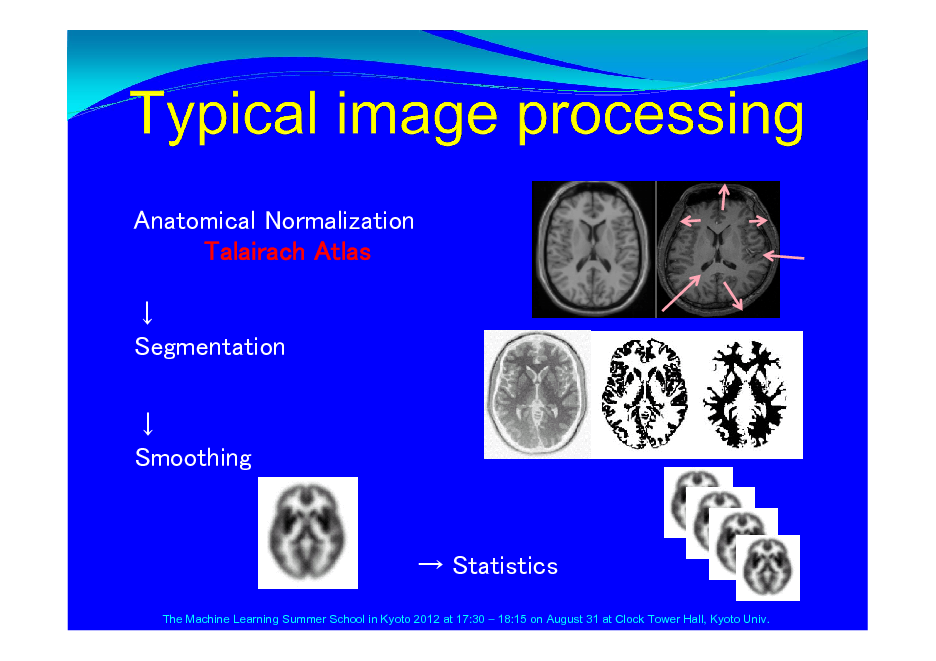 Slide: Anatomical Normalization Talairach Atlas  Segmentation  Smoothing   Statistics The Machine Learning Summer School in Kyoto 2012 at 17:30  18:15 on August 31 at Clock Tower Hall, Kyoto Univ.