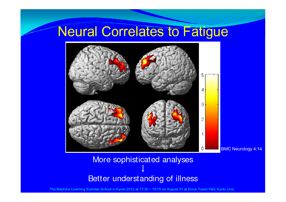 Slide: Neural Correlates to Fatigue  BMC Neurology 4:14  More sophisticated analyses  Better understanding of illness The Machine Learning Summer School in Kyoto 2012 at 17:30  18:15 on August 31 at Clock Tower Hall, Kyoto Univ.