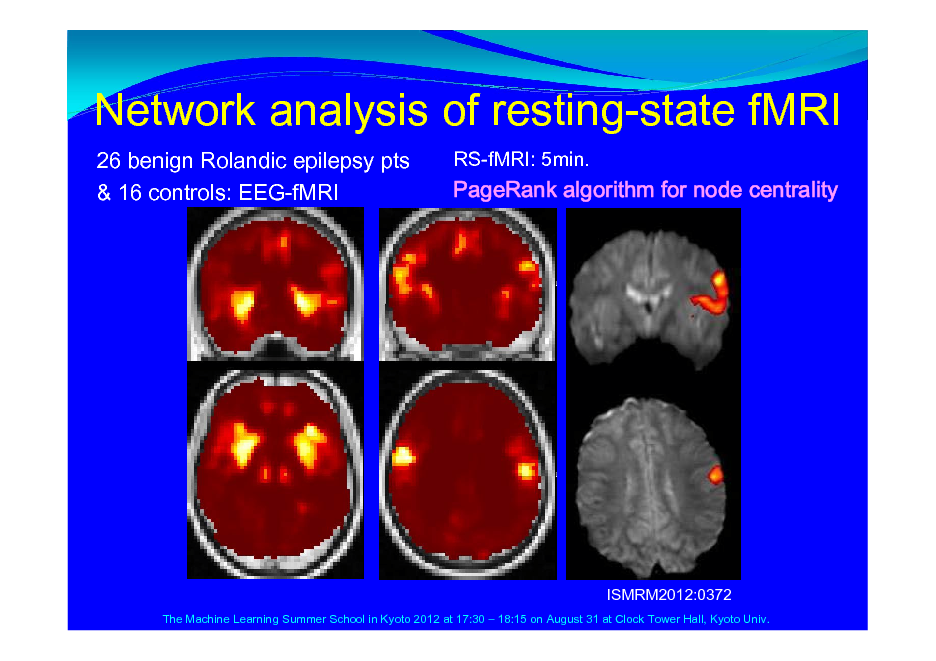 Slide: Network analysis of resting-state fMRI 26 benign Rolandic epilepsy pts & 16 controls: EEG-fMRI RS-fMRI: 5min.  PageRank algorithm for node centrality  ISMRM2012:0372 The Machine Learning Summer School in Kyoto 2012 at 17:30  18:15 on August 31 at Clock Tower Hall, Kyoto Univ.