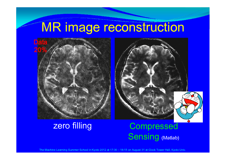 Slide: MR image reconstruction Data 20%  zero filling  Compressed Sensing (Matlab)  The Machine Learning Summer School in Kyoto 2012 at 17:30  18:15 on August 31 at Clock Tower Hall, Kyoto Univ.