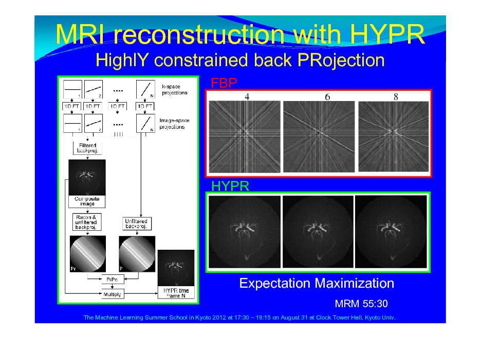 Slide: MRI reconstruction with HYPR HighlY constrained back PRojection FBP  HYPR  Expectation Maximization MRM 55:30 The Machine Learning Summer School in Kyoto 2012 at 17:30  18:15 on August 31 at Clock Tower Hall, Kyoto Univ.