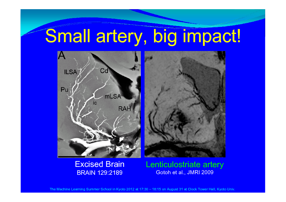 Slide: Small artery, big impact!  Excised Brain BRAIN 129:2189  Lenticulostriate artery Gotoh et al., JMRI 2009  The Machine Learning Summer School in Kyoto 2012 at 17:30  18:15 on August 31 at Clock Tower Hall, Kyoto Univ.
