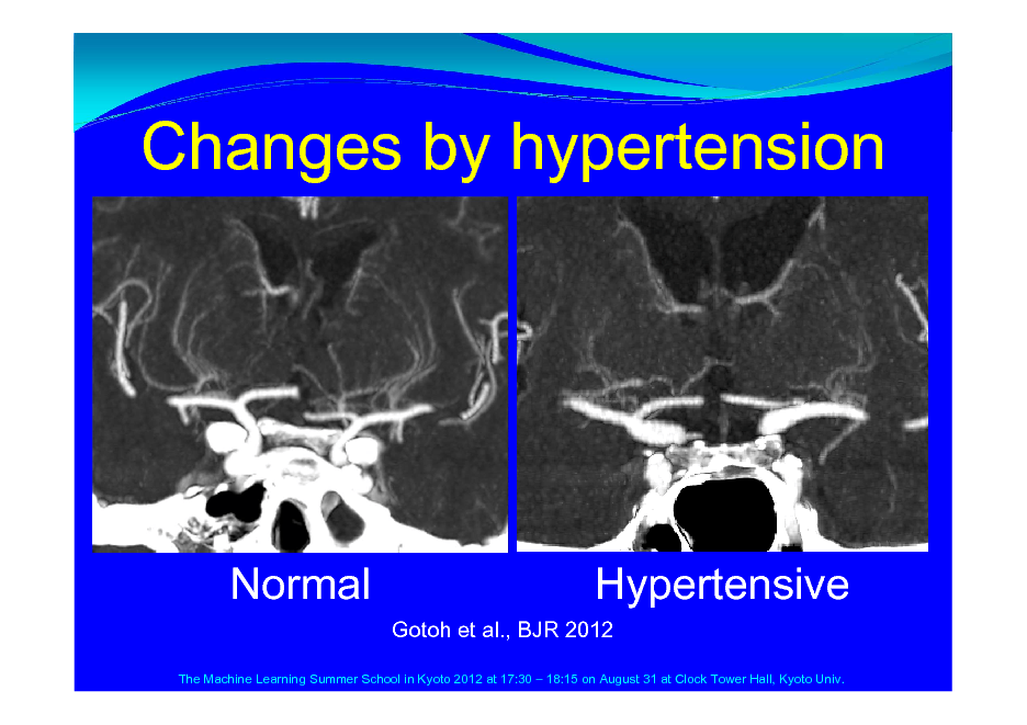 Slide: Changes by hypertension  Normal  Hypertensive Gotoh et al., BJR 2012  The Machine Learning Summer School in Kyoto 2012 at 17:30  18:15 on August 31 at Clock Tower Hall, Kyoto Univ.
