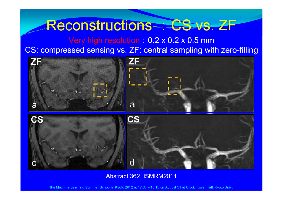 Slide: Reconstructions CS vs. ZF Very high resolution0.2 x 0.2 x 0.5 mm CS: compressed sensing vs. ZF: central sampling with zero-filling  Abstract 362, ISMRM2011 The Machine Learning Summer School in Kyoto 2012 at 17:30  18:15 on August 31 at Clock Tower Hall, Kyoto Univ.